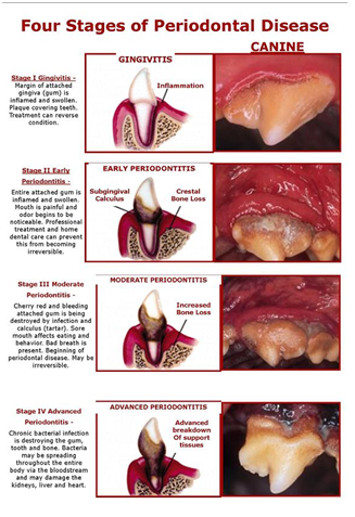 dentaldisease